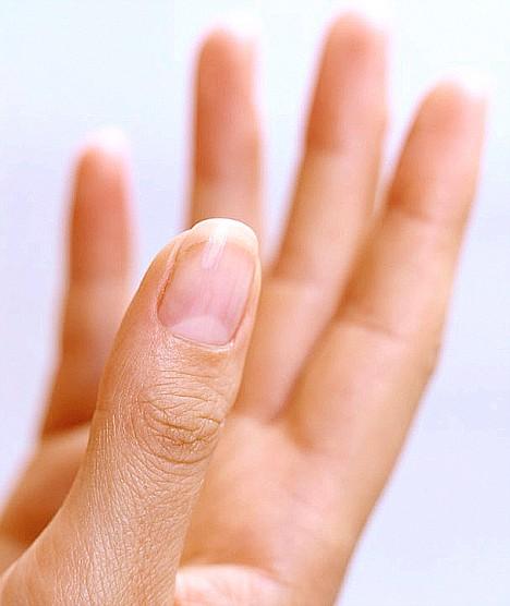 заболевание ногтей на руках фото