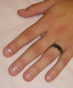 Болезни, определение по ногтям