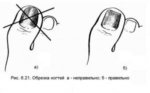 Схема правильного обрезания ногтей