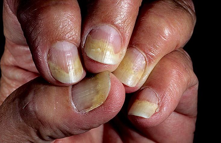 Как проявляется грибок на ногтях рук фото