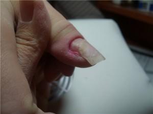 Ногти, виды травм ногтей