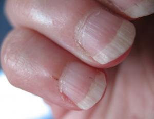 Заусенцы причиняют боль и кровоточат | Заусенцы на неухоженных руках