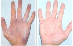 Для диагностики степени гипергидроза рук используют пробу Минора