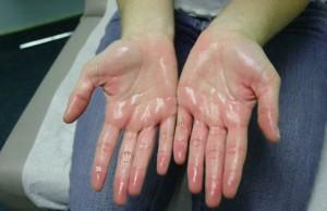 Ладони рук могут потеть из-за физических нагрузок или стрессов