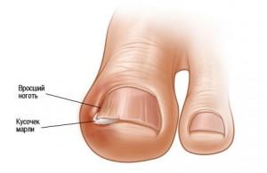 На начальном этапе можно легко избавиться от проблемы вросшего ногтя  | На начальном этапе можно легко избавиться от проблемы вросшего ногтя