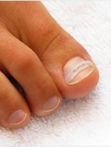 Во время механической коррекции ногтя устанавливаются скобы или брекеты  | Во время механической коррекции ногтя устанавливаются скобы или брекеты