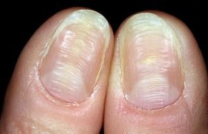 Деформация ногтевых пластин фото | Деформация ногтевых пластин